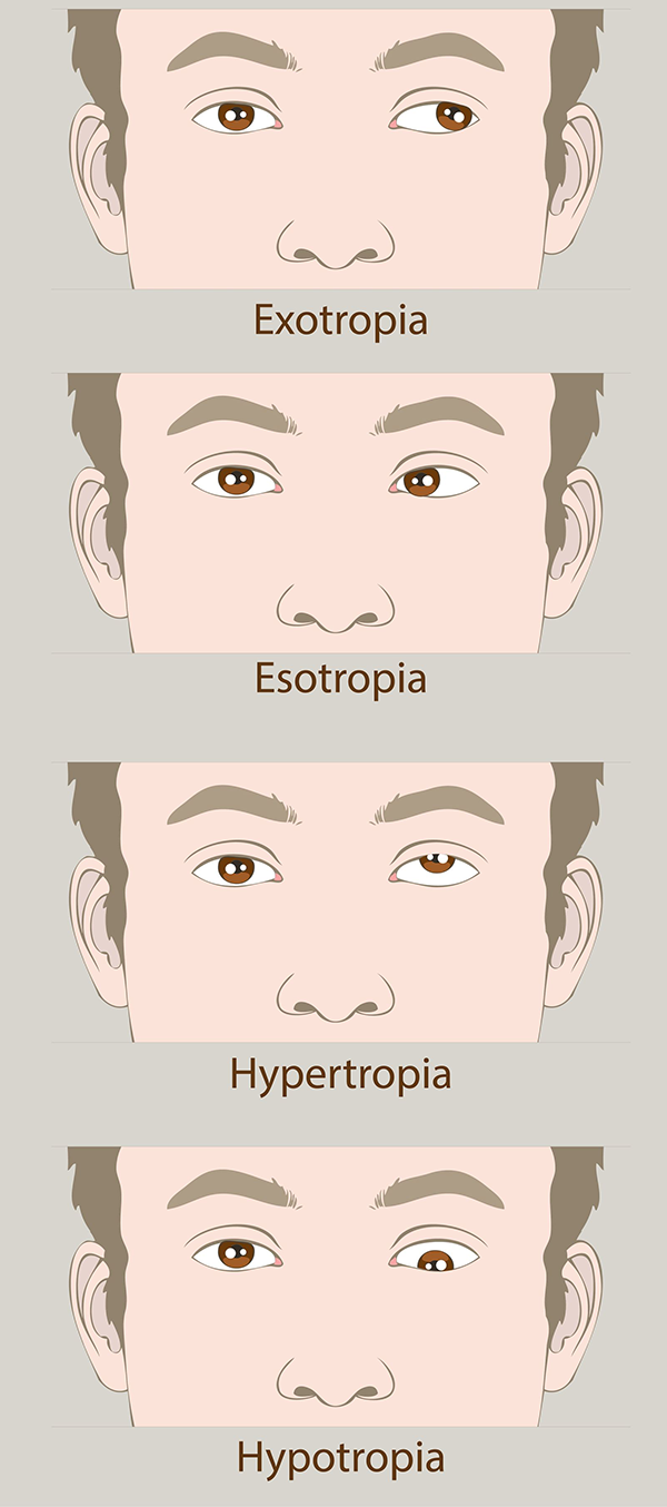 Amblyopia Treatment